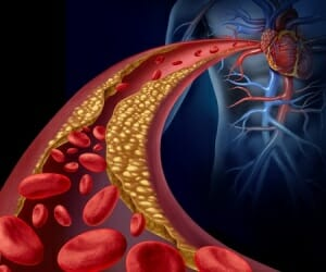 The Enzyme, Serrapeptase,  Removes Plague from Arteries Naturally!