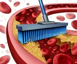 The Enzyme, Serrapeptase,  Removes Plaque from Arteries Naturally!