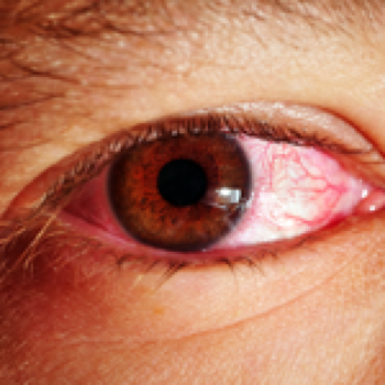 Chronic Conjunctivitis (Pink Eye)