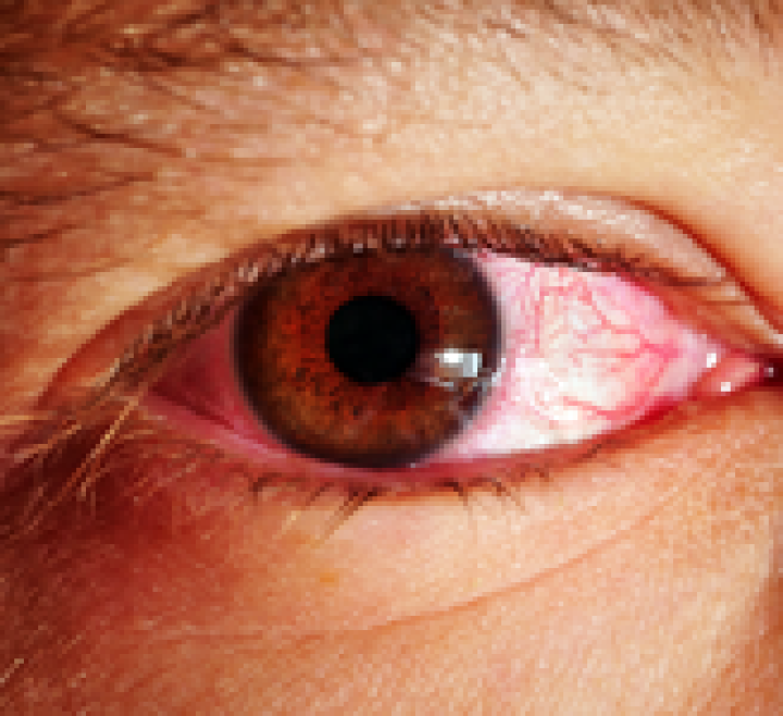 Chronic Conjunctivitis & Riboflavin Deficiency