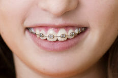 10-Ways-to-Get-Rid-of-Pain-due-to-Dental-Braces