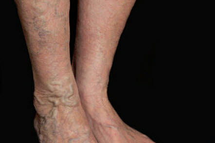 Learn How to Take Care of Varicose Veins